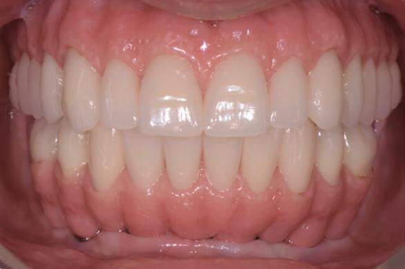 Casi clinici Studio dentistico Gaetano Noè